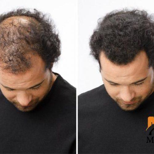 پودر پرپشت کننده موی سر تاپیک